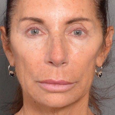 Lip Lift Gallery - Patient 4752036 - Image 1