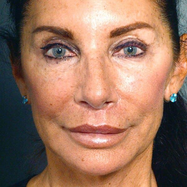 Lip Lift Gallery - Patient 4752036 - Image 2