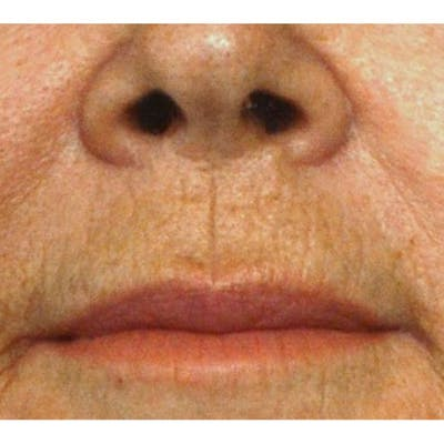 Lip Lift Gallery - Patient 4752038 - Image 1