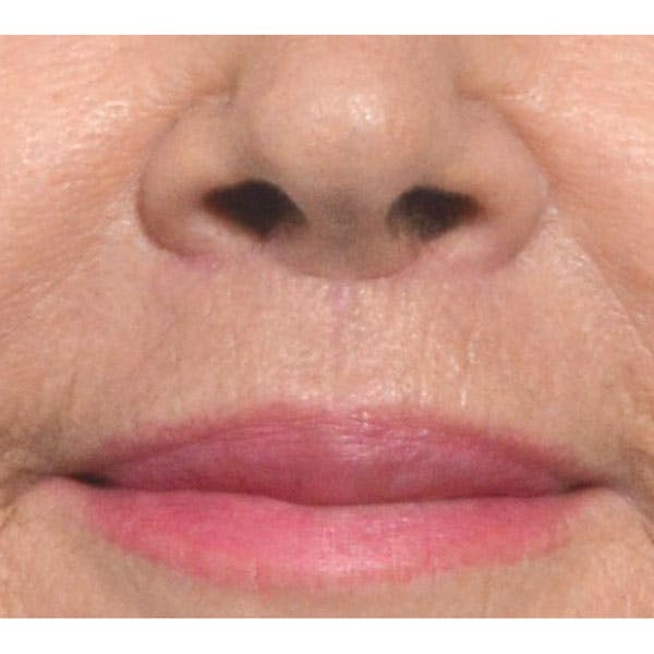 Lip Lift Gallery - Patient 4752038 - Image 2