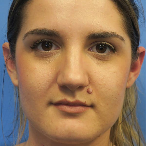 Mole Removal Gallery - Patient 4752040 - Image 1