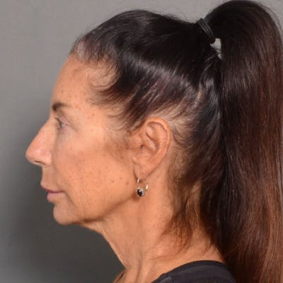 Neck Lift Gallery - Patient 4752041 - Image 1