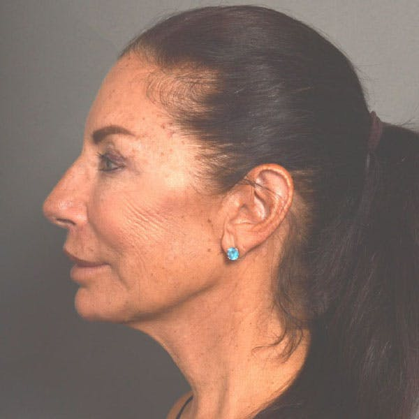 Neck Lift Gallery - Patient 4752041 - Image 2