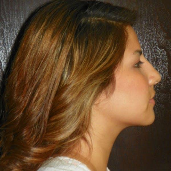 Neck Liposuction Gallery - Patient 4752044 - Image 2
