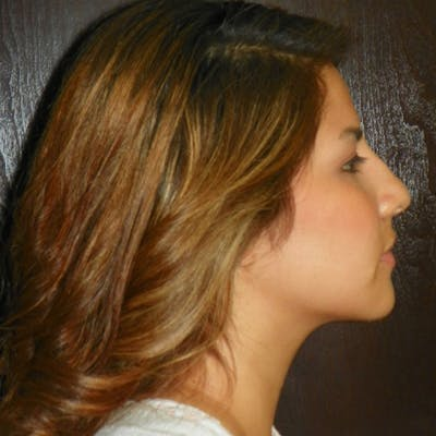 Neck Liposuction Gallery - Patient 4752044 - Image 2