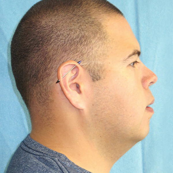 Neck Liposuction Gallery - Patient 4752045 - Image 2