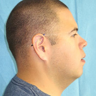 Neck Liposuction Gallery - Patient 4752045 - Image 1
