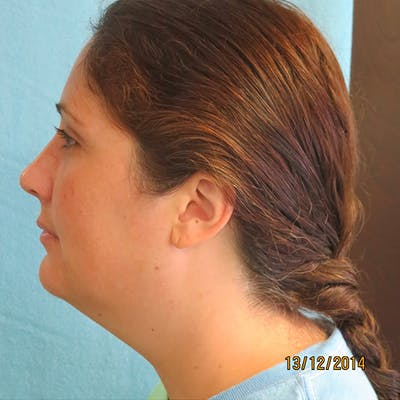 Neck Liposuction Gallery - Patient 4752046 - Image 1