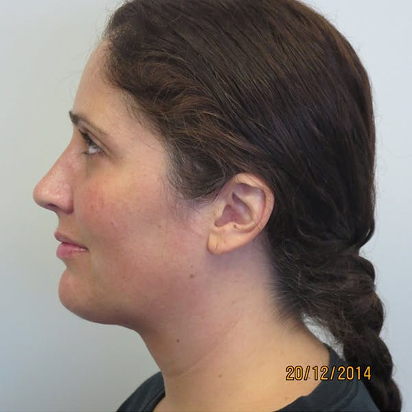 Neck Liposuction Gallery - Patient 4752046 - Image 2