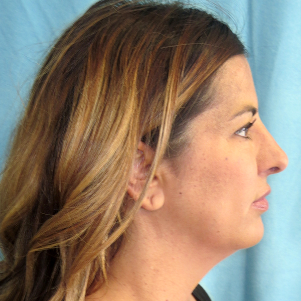 Neck Liposuction Gallery - Patient 4752047 - Image 4