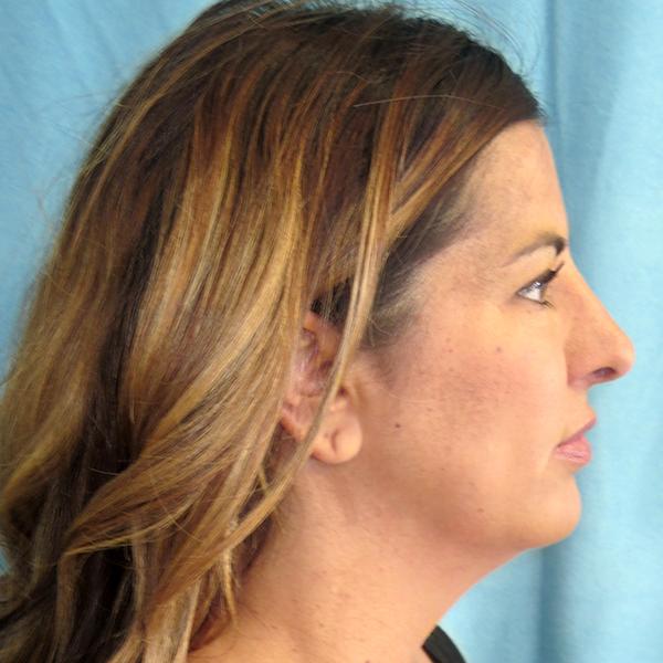 Neck Liposuction Gallery - Patient 4752047 - Image 4
