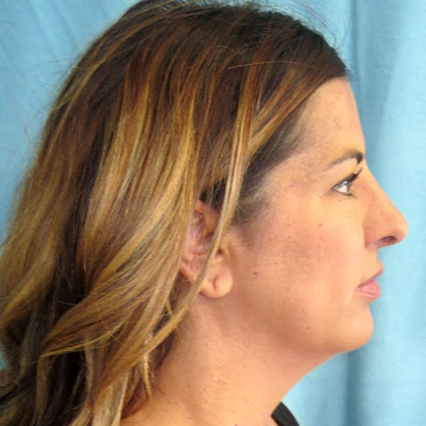 Neck Liposuction Gallery - Patient 4752047 - Image 1