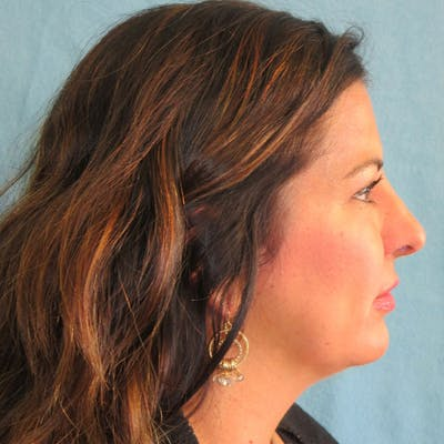 Neck Liposuction Gallery - Patient 4752047 - Image 2