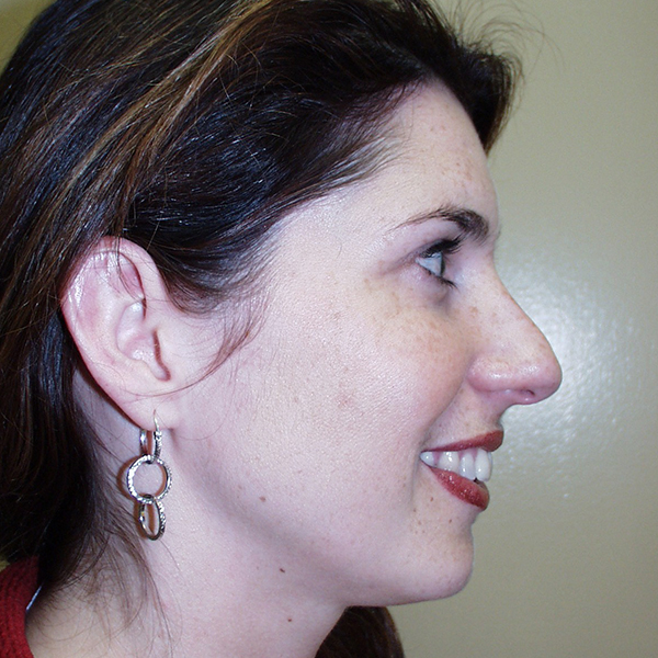 Rhinoplasty Gallery - Patient 4752048 - Image 1