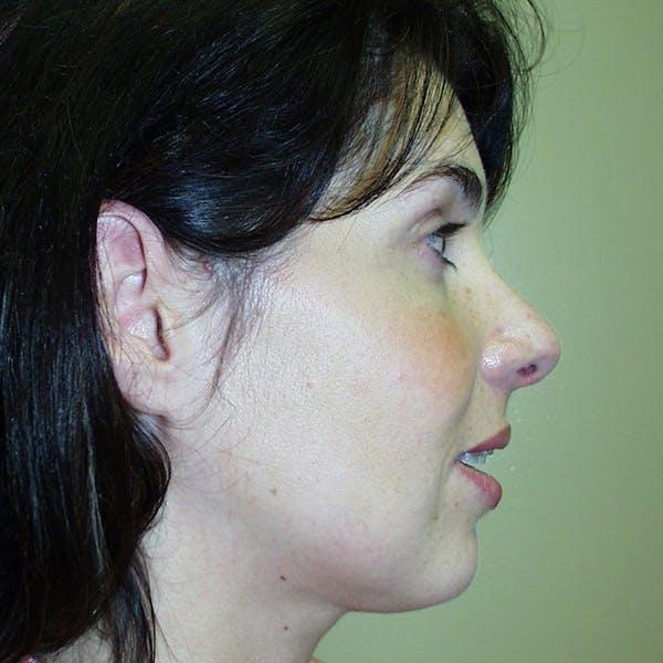 Rhinoplasty Gallery - Patient 4752048 - Image 2
