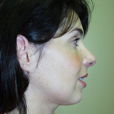 Rhinoplasty Gallery - Patient 4752048 - Image 2