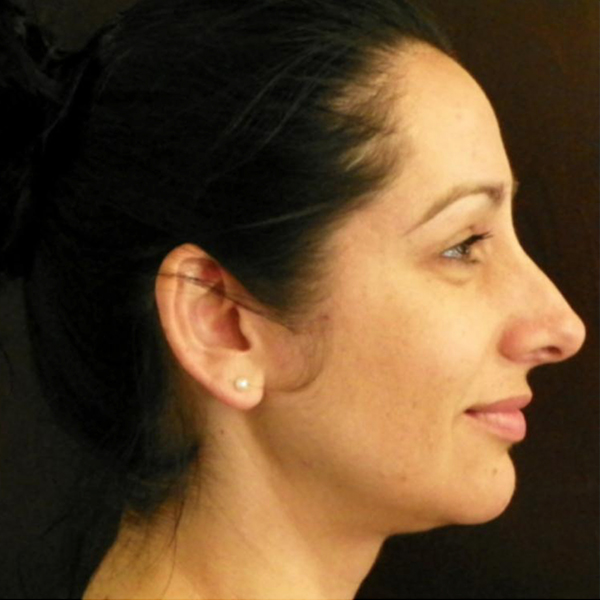 Neck Liposuction Gallery - Patient 4752049 - Image 5
