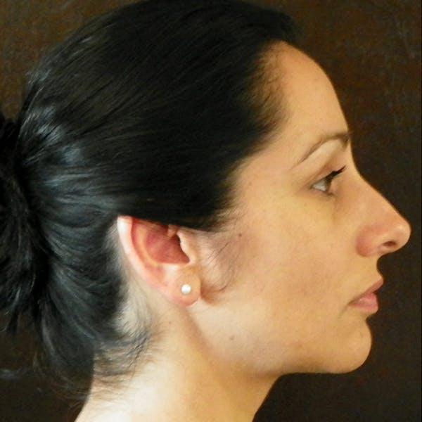 Neck Liposuction Gallery - Patient 4752049 - Image 2
