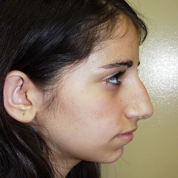 Rhinoplasty Gallery - Patient 4752050 - Image 2