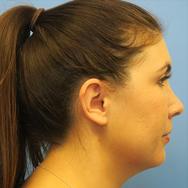 Neck Liposuction Gallery - Patient 4752051 - Image 6
