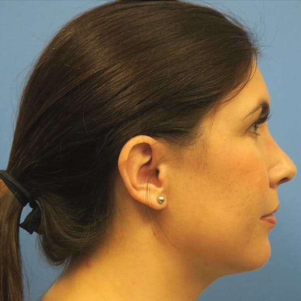Neck Liposuction Gallery - Patient 4752051 - Image 2