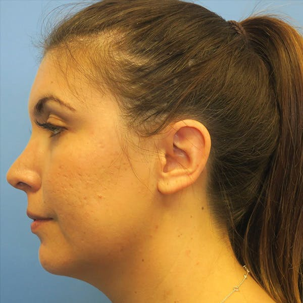 Neck Liposuction Gallery - Patient 4752051 - Image 3
