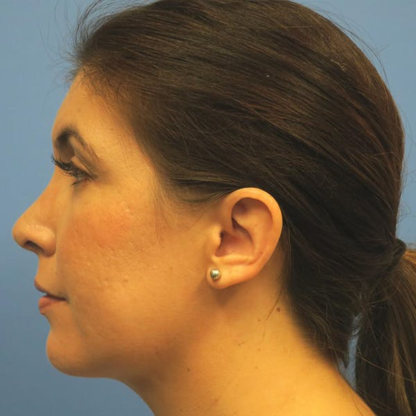 Neck Liposuction Gallery - Patient 4752051 - Image 4