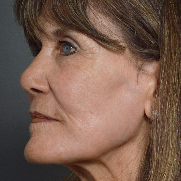 Laser Resurfacing Gallery - Patient 7369306 - Image 2
