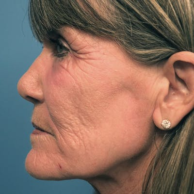 Laser Resurfacing Gallery - Patient 7369306 - Image 1