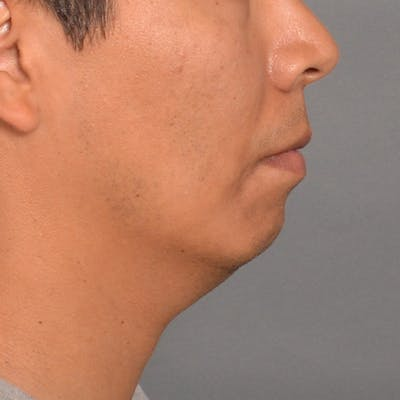 Chin Surgery Gallery - Patient 16688866 - Image 1