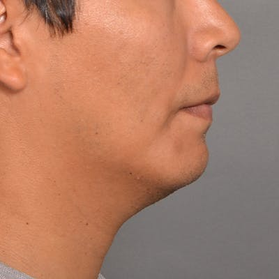 Chin Surgery Gallery - Patient 16688866 - Image 2