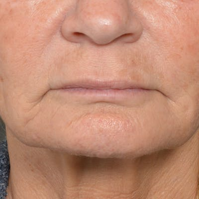 Lip Lift Gallery - Patient 24300366 - Image 1