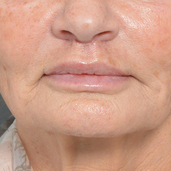 Lip Lift Gallery - Patient 24300366 - Image 2