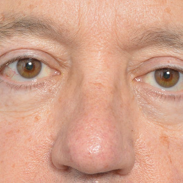 Eyelid Surgery Gallery - Patient 24300409 - Image 2