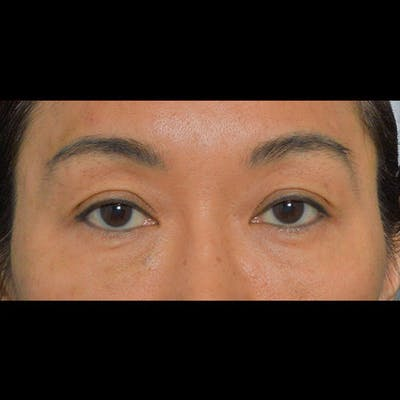 Eyelid Surgery Gallery - Patient 26873284 - Image 1