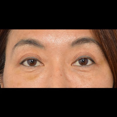 Eyelid Surgery Gallery - Patient 26873284 - Image 2