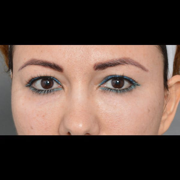 Eyelid Surgery Gallery - Patient 54203774 - Image 1