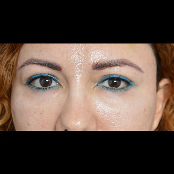 Eyelid Surgery Gallery - Patient 54203774 - Image 2