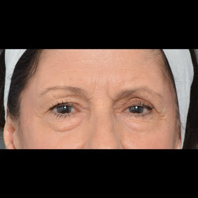 Eyelid Surgery Gallery - Patient 64221567 - Image 1