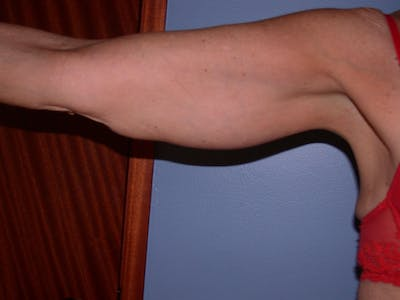 Arm Lift Gallery - Patient 4752087 - Image 1