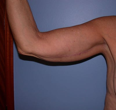 Arm Lift Gallery - Patient 4752087 - Image 2