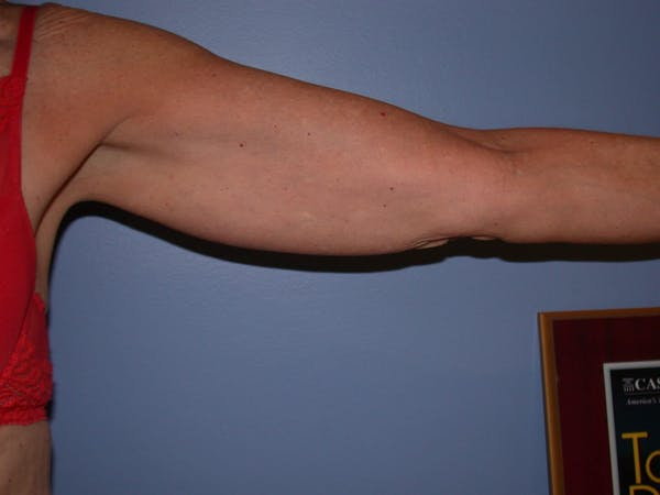 Arm Lift Gallery - Patient 4752087 - Image 3