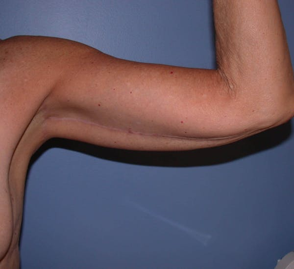 Arm Lift Gallery - Patient 4752087 - Image 4