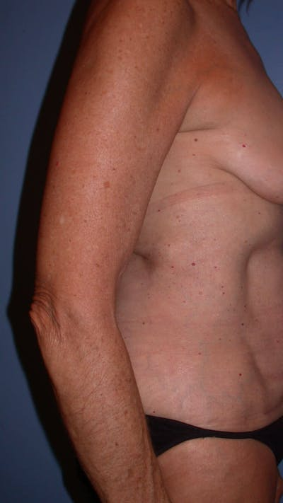 Arm Lift Gallery - Patient 4752087 - Image 6