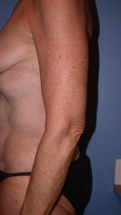 Arm Lift Gallery - Patient 4752087 - Image 8