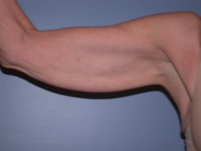 Arm Lift Gallery - Patient 4752090 - Image 1