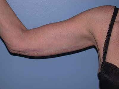 Arm Lift Gallery - Patient 4752090 - Image 2