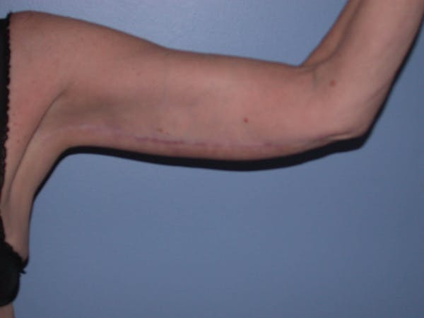 Arm Lift Gallery - Patient 4752090 - Image 4