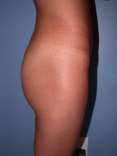 Brazilian Butt Lift Gallery - Patient 4752150 - Image 1