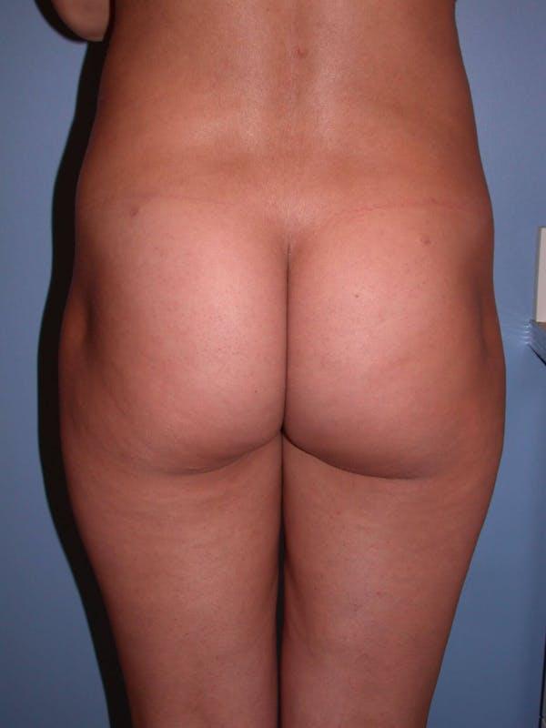 Brazilian Butt Lift Gallery - Patient 4752150 - Image 3